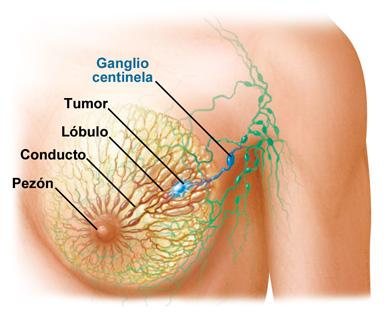 cancer mama embarazo