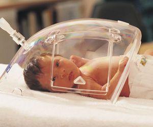 Tratamiento con oxígeno para los prematuros