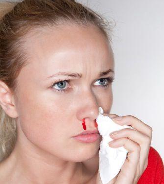 Hemorragia nasal en el embarazo